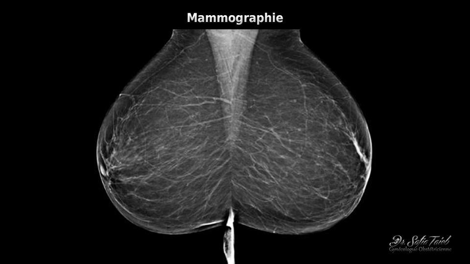 Forums des forums sur le cancer du sein