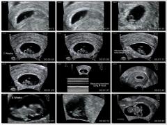 Echographie Lembryon De 5 A 9 Semaines