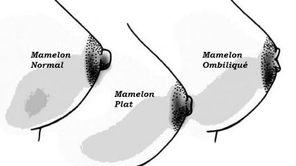 Différents types de mamelons